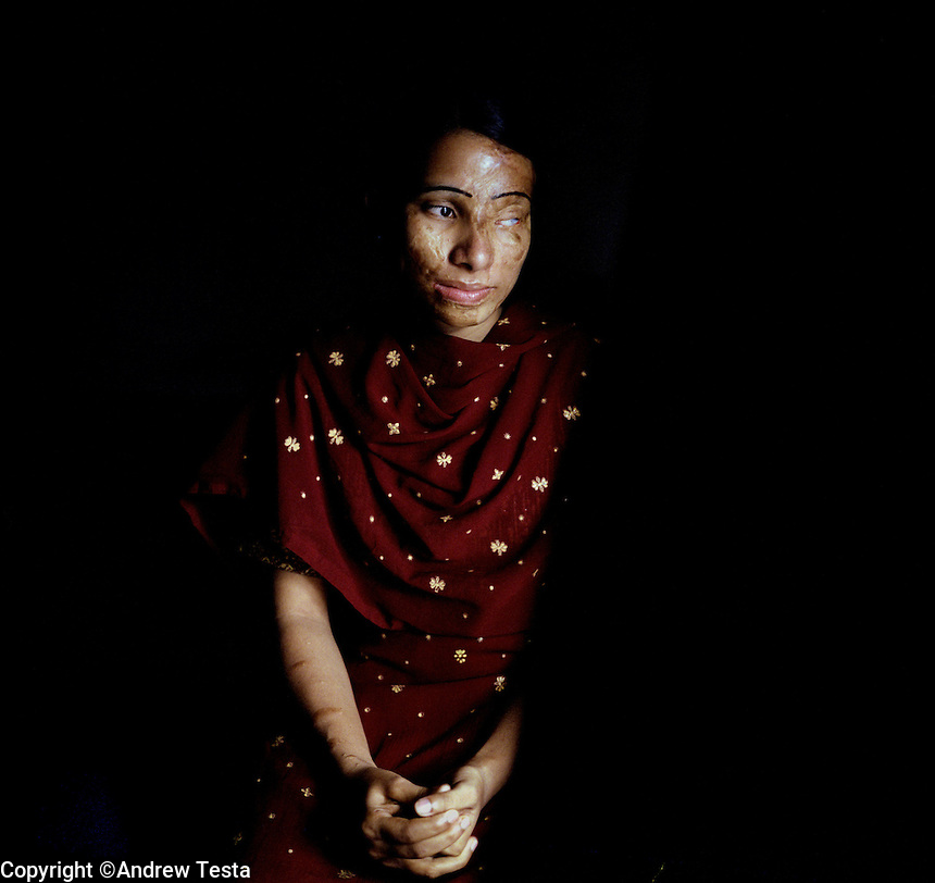BANGLADESH. Dhaka. June 2005..Lilima. 26 years old. Attacked for refusing an offer of marriage..©Andrew Testa
