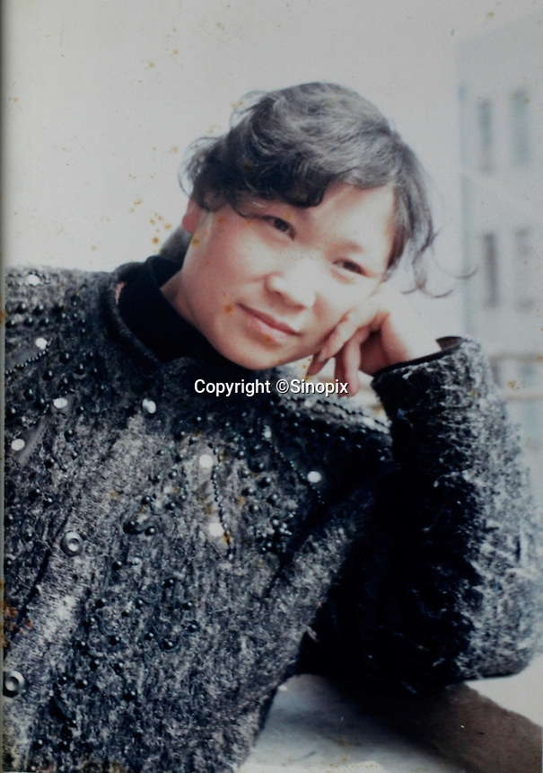 Picture of Liu Yuanchun taken in 1999 in Nanjing, China. In 2002, Liu Yuanchun poured acid on her then 8 year old niece Liu Fangyuan (Yuan Yuan) after losing a dispute with the girl's father in regards to a 40 squared meter apartment. The attack blinded and seriously disfigured Yuan Yuan, while her Liu Yuanchun is serving a life sentence in prison, Yuan Yuan and her family awaits a controversial face transplant...PHOTO BY SHEN / SINOPIX
