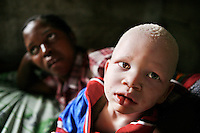 Cletus with his mother. Discrimination against albinos is a serious problem throughout sub-Saharan Africa, but recently in Tanzania albinos have been killed and mutilated, victims of a growing criminal trade in albino body parts fuelled by superstition and greed. Limbs, skin, hair, genitals and blood are believed by witch doctors to bring good luck, and are sold to clients for large sums of money, carrying with them the promise of instant wealth.