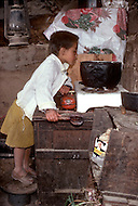 In Colombia, children are often burned by oil whilst working in kitchens. - Child labor as seen around the world between 1979 and 1980 - Photographer Jean Pierre Laffont, touched by the suffering of child workers, chronicled their plight in 12 countries over the course of one year.  Laffont was awarded The World Press Award and Madeline Ross Award among many others for his work.