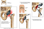 Revision of Left Hip Prosthesis (Artificial Hip Joint). This medical illustration series of a left hip acetabular prosthesis revision pictures a loose-fitting prosthetic acetabulum causing stress on the joint socket with significant pain and discomfort. Following this graphic are a series of two surgical illustrations displaying the hip incision, removal of the old harware, debriding of the acetabulum, and the replacement of a new prosthesis.