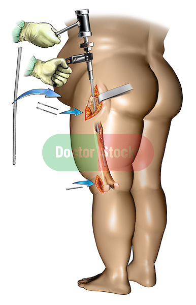 Femur fracture fixation in an obese person - insertion of intramedullary rod into the femur