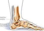 This medical exhibit pictures the achilles (calcaneal) tendon and calcaneus (heel) bone from a lateral (side) view.
