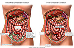 This medical exhibit depicts an appendicitis and Crohnís Disease ileitis and the subsquent condition following surgical removal of the infected appendix (appendectomy surgery), excess peritoneal fluid and infection.
