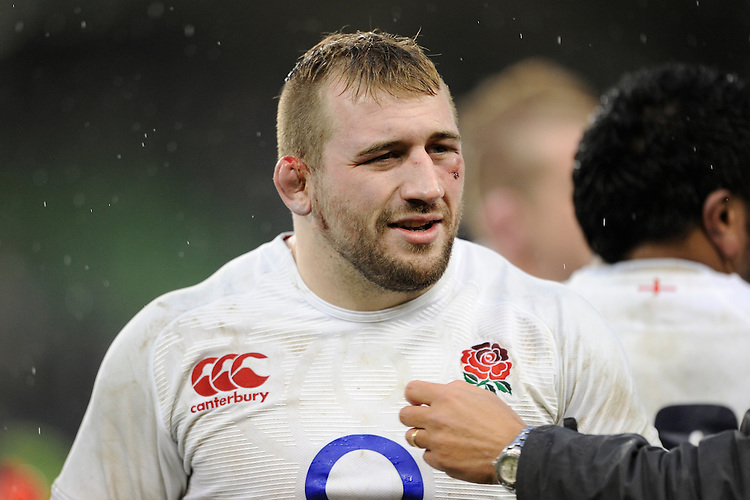 A bruised but happy Joe Marler of England after winning the RBS 6 Nations match between Ireland and England at the Aviva Stadium, Dublin on Sunday 10 February 2013 (Photo by Rob Munro)