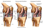 This full color medical illustration pictures  the progression of injury to the right knee.