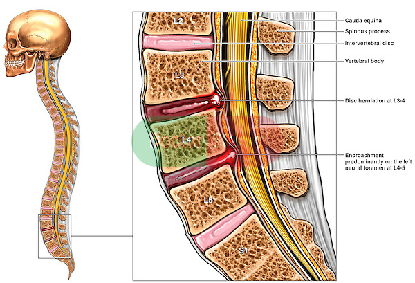 Low Back Pain - L3-4 Lumbar Disc (Disk) Herniation. This full color medical exhibit portrays a dual level intervertebral disc injury. The first illustration provides an overall orientation of the spinal column with the area of injury indicated by a box. Next to this is an enlarged sagittal view of the lumbar spine from L2-S1. Disc herniations are shown at the the L3-4 and L4-5 levels. Both herniations protrude into the spinal canal and compress the cauda equina  (cauda equina syndrome).
