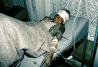 A young boy hit by a antipersonnel mine..Every days, 30 to 45 peoples get kill or amputated only in the city of Kabul.