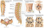 Lumbar Spine Degeneration - Severe Radiculopathy with Decompression Surgery. Accurately depicts intervertebral disc degeneration at L2-3, L3-4, L4-5 and disc herniation at L5-S1 with resulting chronic leg pain. A series of discectomy (diskectomy) procedures and laminectomy are performed to correct the defects.