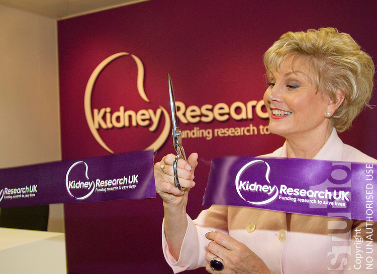 Angela Rippon opening the new Kidney Research Building Lynchwood Peterborough