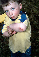 Little boy showing his cut elbow and face after falling off the swing in an adventure playground. This image may only be used to portray the subject in a positive manner.<br /> ©shoutpictures.com<br /> <br /> john@shoutpictures.com