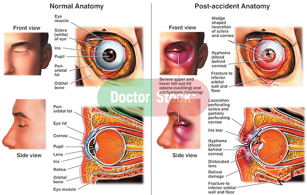 This medical exhibit provides an overview of the normal anatomy of the eye. It also depicts a post-accident condition with multiple left eye injuries. Both the anterior and cut-away views are included.