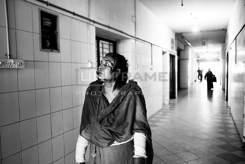 50 years old Jahanara Khatun, 27 % of her body burned when unknown people torched three people as she was returning home from her daughter house on 6th December 2013. Dhaka, Bangladesh