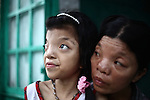 """Le Thi Thu, 42, and her daughter, Nguyen Thi Ly, 11 sit outside their home in a village south of Da Nang, Vietnam. They are second and third generation victims of dioxin exposure, the result of the U.S. military's use of Agent Orange and other herbicides during the Vietnam War more than 40 years ago. Despite their facial deformities and other health problems, Thu says she never feels anger at what has happened to herself and her daughter. """"I'm not angry with anybody just because Vietnam had a war,"""" she says. """"A lot of people suffered. Sometimes I feel sad, but I'm not angry with anybody."""" The Vietnam Red Cross estimates that 3 million Vietnamese suffer from illnesses related to dioxin exposure, including at least 150,000 people born with severe birth defects since the end of the war. The U.S. government is paying to clean up dioxin-contaminated soil at the Da Nang airport, which served as a major U.S. base during the conflict. But the U.S. government still denies that dioxin is to blame for widespread health problems in Vietnam and has never provided any money specifically to help the country's Agent Orange victims. May 28, 2012."""