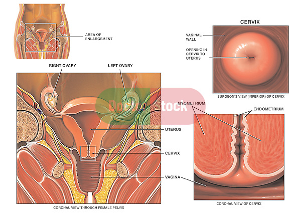 This medical exhibit depicts the anatomy of the female reproductive organs with emphasis on the cervix. Labeled structures include the ovary, vaginal wall, cervix, cervical opening into uterus (cervical os), myometrium, endometrium and uterus.