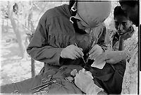 Surgery by Cuban doctor and Guinean nurse perform Surgery in Sara , Guinea-Bissau,  1974