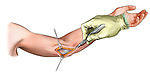 medial elbow incision; depicts the medial elbow incision which is created to expose the ulnar nerve