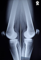 X-ray image of woman's (53) knees joints (Licence this image exclusively with Getty: http://www.gettyimages.com/detail/97580221 )