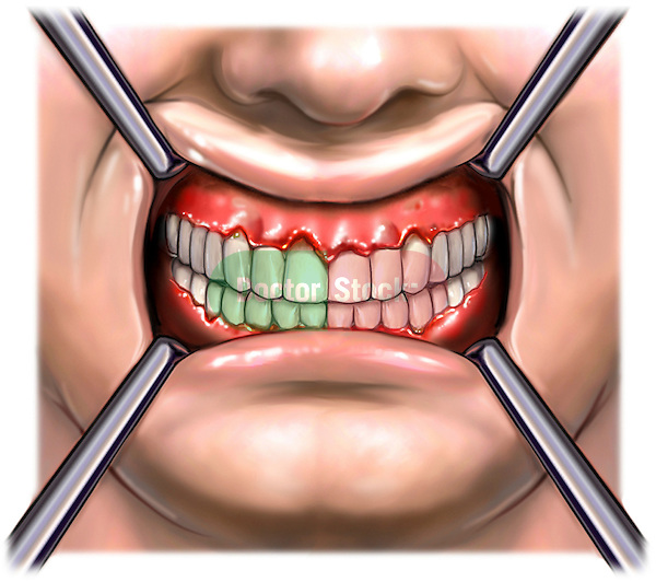 This full color medical illustration pictures the primary appearance of the teeth and gums exhibiting signs of periodontal disease. This anterior (front) view of the mouth shows the classic swollen, red, inflamed, bleeding and ulcerated gums and periodontal membranes. This image is intentionally left unlabeled to accommodate custom label requests.