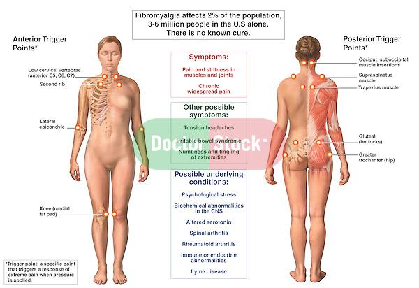 This medical exhibit identifies the trigger points, symptoms and underlying condition of fibromyalgia syndrome (FMS). The bony landmarks and muscles associated with the pressure points are indicated and labeled on two views, anterior (front) and posterior (back), of the female figure.