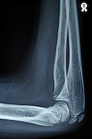 X-ray image of boy's (11) joint elbow (Licence this image exclusively with Getty: http://www.gettyimages.com/detail/97580218 )