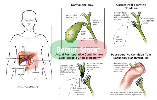 Laparoscopic Cholecystectomy (Gallbladder Removal) Surgery with Iatrogenic Bile Duct Injury.