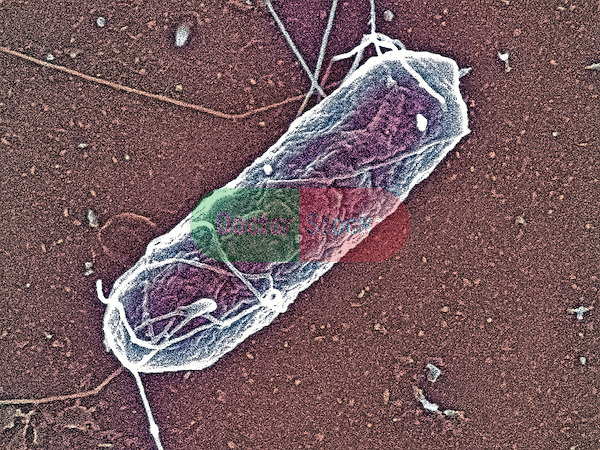 Salmonella enteritidis bacteria, causes salmonellosis, typhoid fever, food poisoning, 50,000x magnification