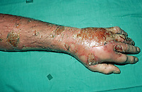 Burns to arm and hand caused by oil from a chip pan catching alight. This image may only be used to portray the subject in a positive manner..©shoutpictures.com..john@shoutpictures.com