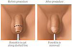Circumcision procedure showing the removal of foreskin.