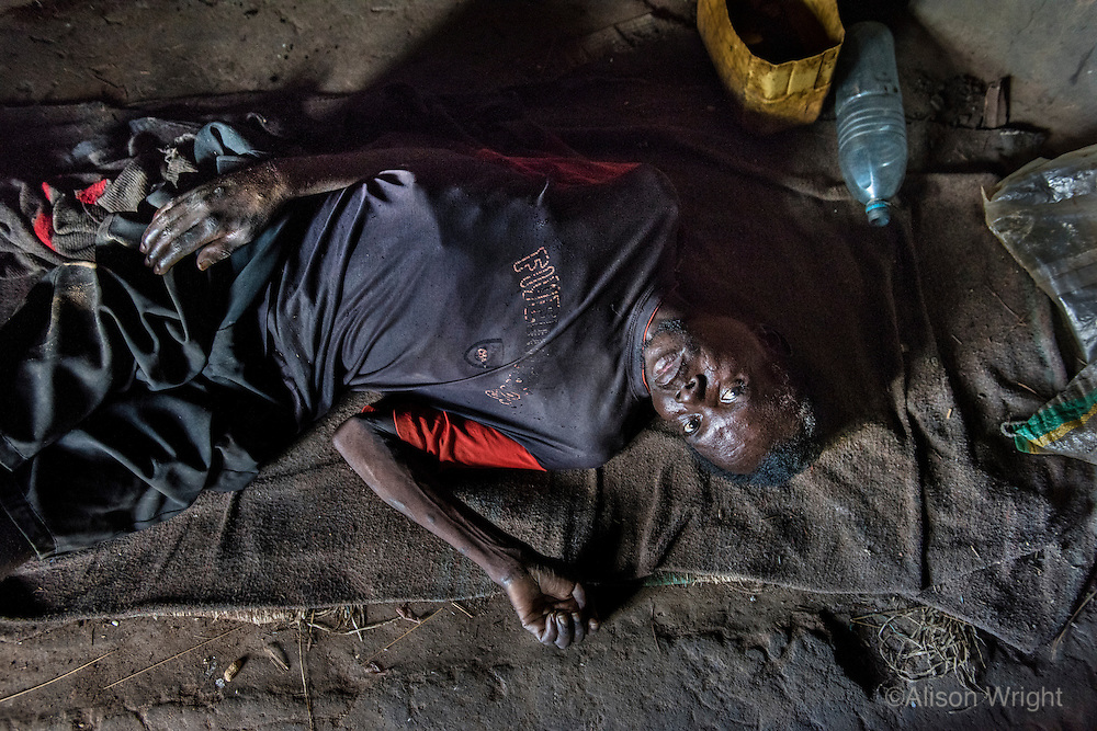 """N. Uganda, Kitgum District. """"Samuel,"""" (37 yrs), had 3 brothers who were killed by rebels. He has HIV AIDS & suffers from depression. He can't walk & shifts from place to place on his buttocks, elevating his swollen feet from the ceiling. He relies on visits from a PCAF social worker and help from a neighbors & a sister for food, water & his ART/HIV medication. His Christian beliefs prevent him from suicide, thus continuing on with what he feels is a worthless & futile life."""