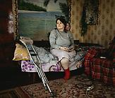 Tatjana kam als Geflüchtete nach Tryohizbenka. Im Juni 2014 war sie auf dem Weg in die Krankenstation mit der mittleren ihrer drei Töchter, als heftiger Beschuss einsetzte. Sie setzte ihre Tochter vor sich auf ihren Motorroller und versuchte zum nächsten Haus mit Keller zu fliehen. Auf der Fahrt schlug neben den beiden ein Geschoss ein. Ein Schrapnell durchbohrte ihre Tochter Valia und drang in ihren Bauch ein. Bei dem Vorfall verlor Tatjana ihr linkes Bein, ihr Gehör und ihre Tochter.