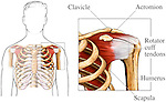 This exhibit features an anterior overview of the male upper torso highlighting the rotator cuff. Next to that image, is a detailed enlargement of the bones, muscles and tendons of the left shoulder which make up the rotator cuff region. Labels identify the: clavicle, acromion, rotator cuff tendons, humerus and scapula.