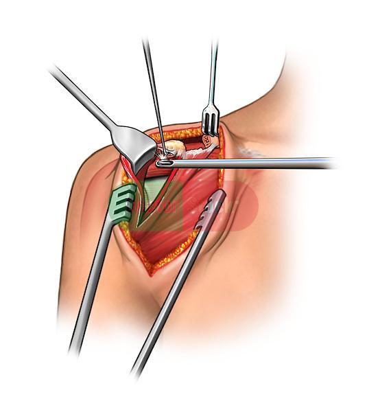 open shoulder surgery - acromioplasty