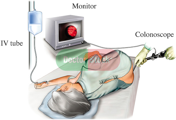 This stock medical illustration features a colonoscopy procedure, in which the physician examines the inside of the entire large intestine from the rectum up to the small intestine through a long flexible and lighted tube called a colonoscope. The patient lies on the left side on the examining table. The scope is inserted in the rectum and images of the inside of the colon are projected on a monitor.