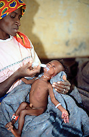 Angola. Cuando Cubango.Mavinga. Young girl, severely malnourished child, in a hospital run by MSF (Médecins Sans Frontières) Switzerland.  A MSF nurse tries to feed the skinny girl using a syringe to pour enriched milk into her mouth. © 2002 Didier Ruef