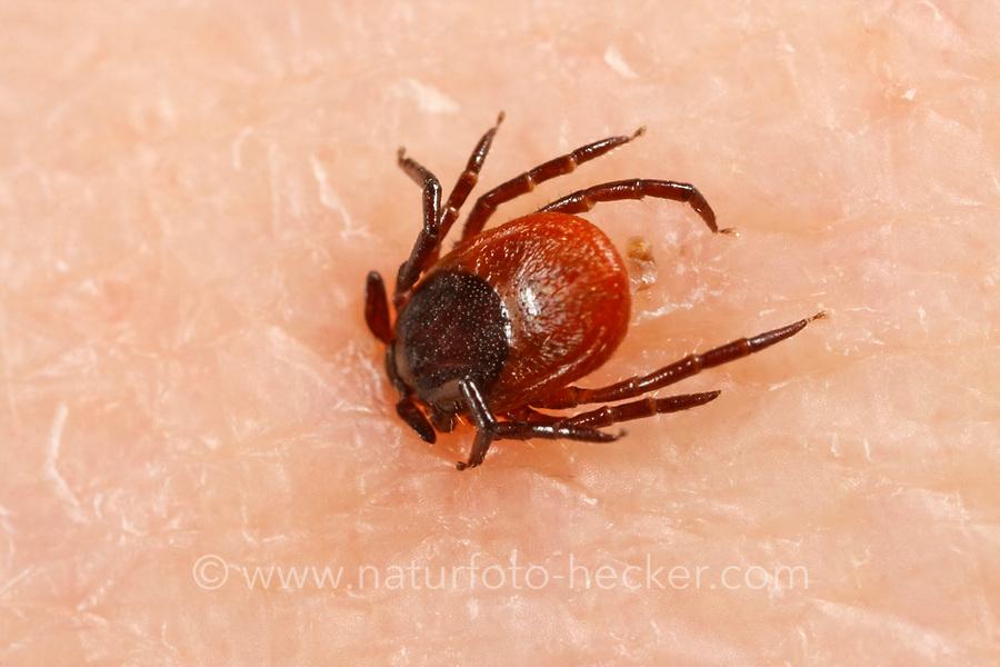 Zecke, Holzbock, saugend in menschlicher Haut, Zecken, Ixodes ricinus, castor bean tick, European castor bean tick, European sheep tick, tick, ticks