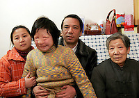 11 year old Liu Fangyuan (Yuan Yuan) sits with her mother Fang Jian, father Liu Yuanlin, and grandmother Liu Guiying at their tiny apartment in Nanjing, China. In 2002, Yuan Yuan's aunt poured sulfuric acid on her face after losing a housing dispute with Yuan Yuan's father. The attack blinded and seriously disfigured Yuan Yuan, while her aunt is serving a life sentence in prison, Yuan Yuan and her family awaits a controversial face transplant...PHOTO BY SHEN / SINOPIX