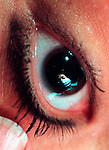 extreme close up of woman's eye with reflection of masked cosmetic plastic surgeon in pupil