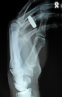 Man's (58) left hand with wedding ring, X-ray, Man's (58) left hand is broken at the extremity of the radius bone<br />  (Licence this image exclusively with Getty: http://www.gettyimages.com/detail/98945991 )