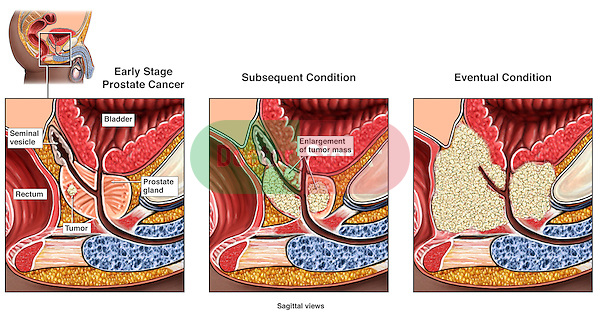 This full color medical exhibit portrays the development of prostate cancer in three stages. The first stage shows the appearance of a small mass within the prostate gland. The second stage  shows the cancer spread throughout the gland. The third stage show the dysplasia extending out and involving the rectum, colon and bladder.
