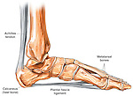 This medical exhibit pictures the plantar fascia ligament on the sole of the foot. Labels identify the achilles tendon, calcaneus, metatarsal bones and plantar fascia ligament.