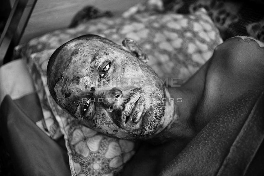27 years old bus driver  Md Mahbub Hossain severaly burnt when suspected Opposition activists torched a commuter bus at Shahbagh on the third day of the 71-hour nationwide blockade on 28th November 2013. Dhaka, Bangladesh