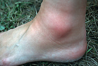 Insect bite on the ankle. This image may only be used to portray the subject in a positive manner..©shoutpictures.com..john@shoutpictures.com