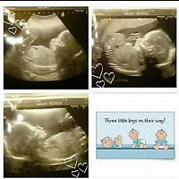 Pictured: Scans of the triplets, two of whom have died in the Wildmill area of Bridgend, Wales, UK. IMAGE TAKEN FROM OPEN FACEBOOK ACCOUNT.<br /> Re: Two five-month old baby boys have died after they were found not breathing at a house in Bridgend.<br /> Emergency services were called to an address in the Wildmill area of the town.<br /> The brothers, who were two of a set of triplets, were taken to the Princess of Wales Hospital where they were later pronounced dead.<br /> The surviving brother is called Ethan, and the mother is called Sarah Owen.<br /> South Wales Police said the deaths were not being treated as suspicious, but as a tragic accident.<br /> Enquiries are continuing into the cause of the deaths.