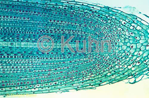 PX01-013a  Onion Root - mitosis cells dividing - Allium cepa  100x