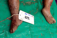 The feet of a person killed in the tsunami which struck South Asia on 26/12/2004, given a number to assist in the identification process.