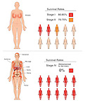 This full color medical exhibit shows the survival rates for breast cancer for stages I, II and IV.