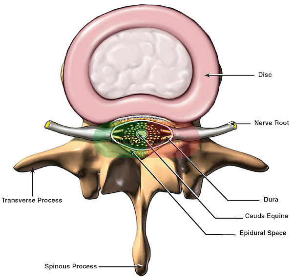 This illustration depicts the anatomy of a vertebral (intervertebral) disc in the lumbar spinal region.