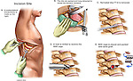 Back Surgery - Multilevel Thoracic Spinal Fusion Procedure. This custom medical exhibit revels a posterolateral thoracotomy incision to access the thoracic spinal vertebrae. Additional surgical steps show detailed views of the thoracic spine and ribs with the following: 1. Discectomy, 2. Drilling of the vertebrae, and 3. Placement of BAK bone cages for spinal fusion.