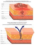 This medical exhibit depicts two (2) enlarged cut-away sections of the skin depicting septic surgical wound management for post-operative skin infections.  The first illustration illustrates a septic wound beginning in the fatty subcutaneous space between the skin and fascia, draining through a skin incision. It includes labels for sutures, skin, fat, fat fascia, muscle, peritoneum and the abdominal cavity. The second illustration pictures the usual management of the septic wound including removing the sutures superficial to the fascia, then opening the skin and fat, permitting drainage of the infected wound.